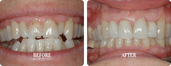 Before After Veneers