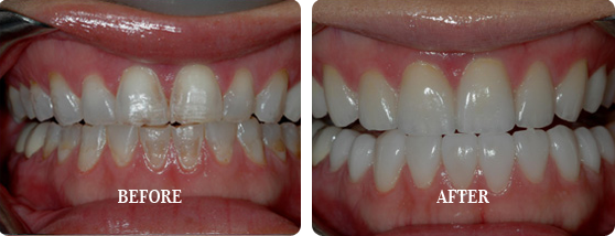 Before and After Treatment Results of Nnamdi Orakwue From E. Griffin Cole, DDS, NMD
