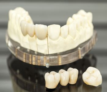 Understanding crown and bridges for damaged and missing teeth in Austin