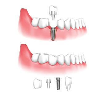 Implant treatment from expert dentist in Austin, TX