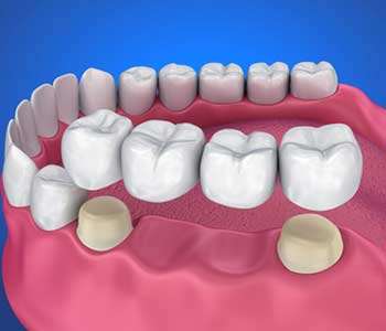 Austin, TX dentist describes the types of dental bridges available