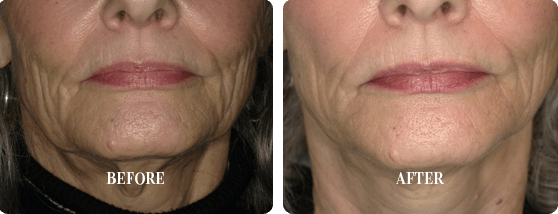 Before and After Smoothlase Treatment Images 4 From E. Griffin Cole, DDS, NMD