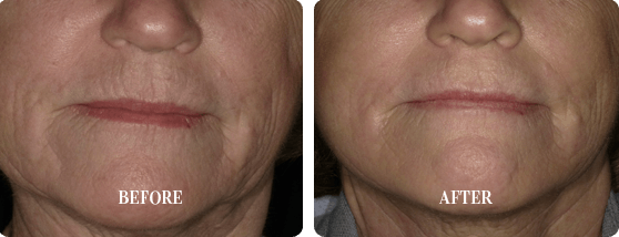 Before and After Smoothlase Treatment Images 3 From E. Griffin Cole, DDS, NMD