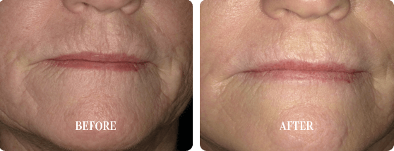 Before and After Smoothlase Treatment Images 2 From E. Griffin Cole, DDS, NMD