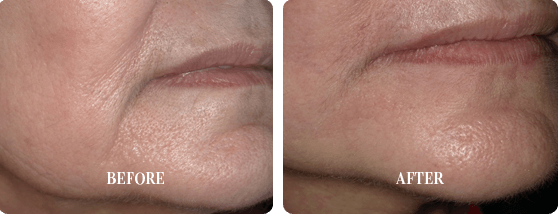 Before and After Smoothlase Treatment Images 1 From E. Griffin Cole, DDS, NMD